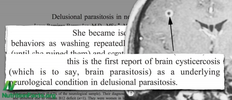 NF-Not So Delusional Parasitosis