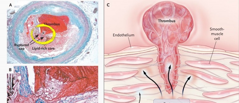 NF-Arterial Acne