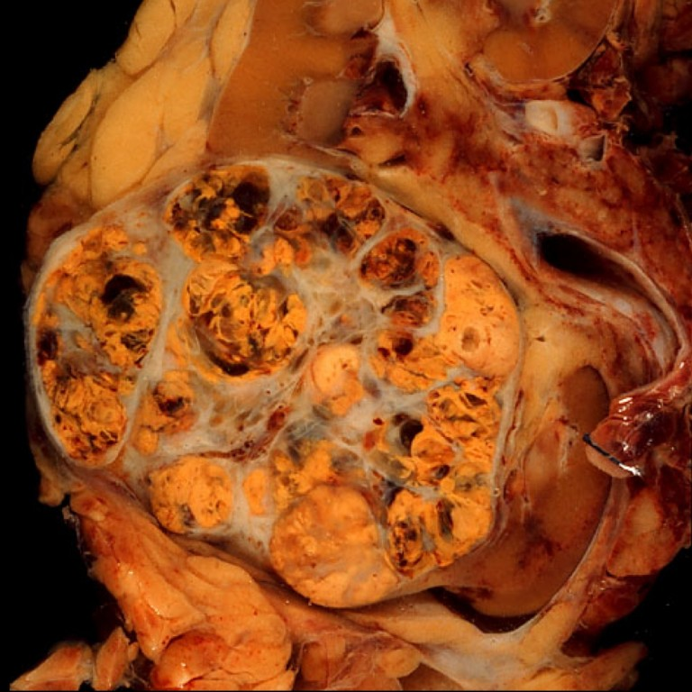 May 16 AtD Kidney.062