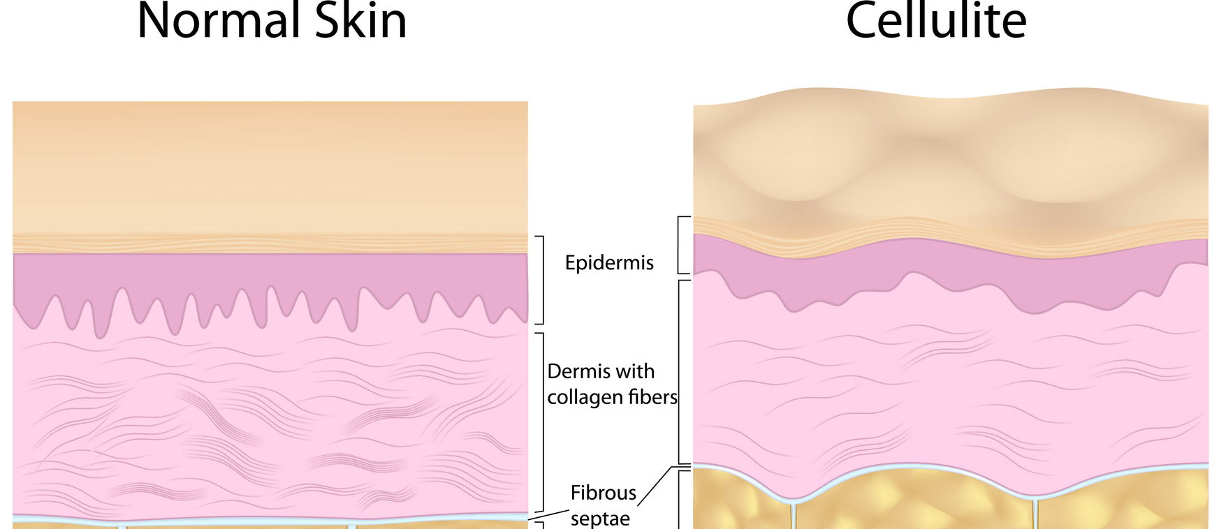 Can Cellulite Be Treated With Diet?