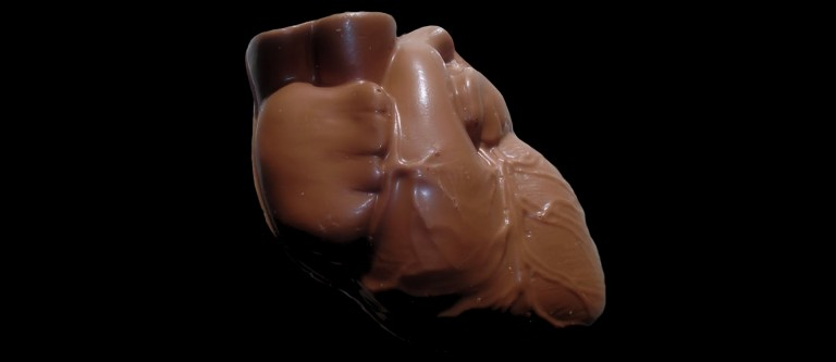 Dark Chocolate and Artery Function