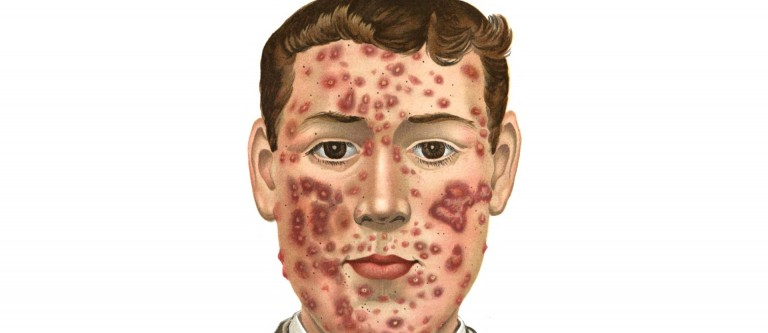 Saving Lives By Treating Acne With Diet