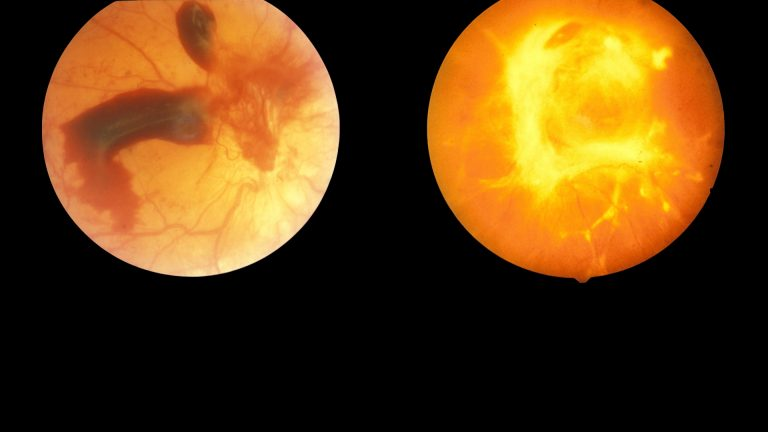 Can Diabetic Retinopathy Be Reversed?